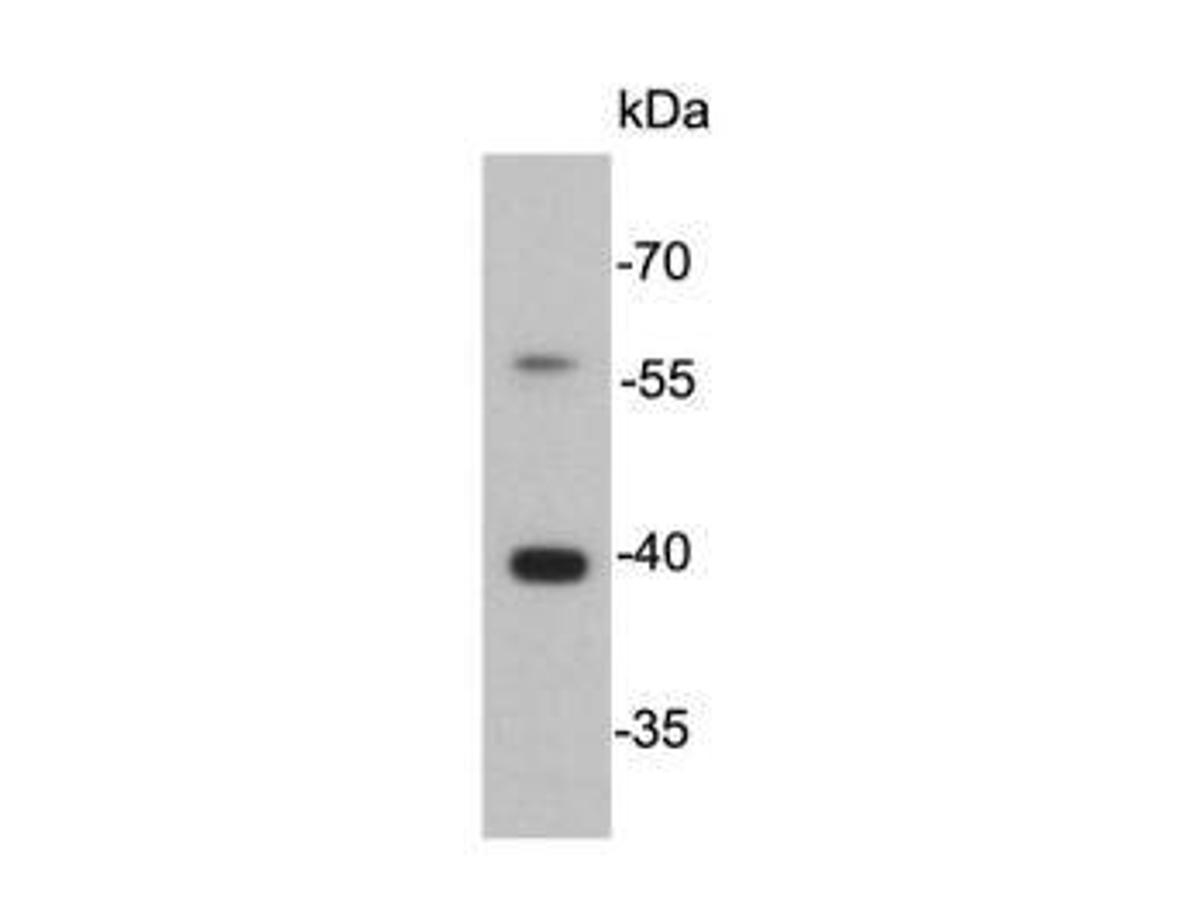 Western blot analysis of Cathepsin B on SW480 cell lysate using anti-Cathepsin B antibody at 1/5,000 dilution. <br />  <br />  <br />  <br />