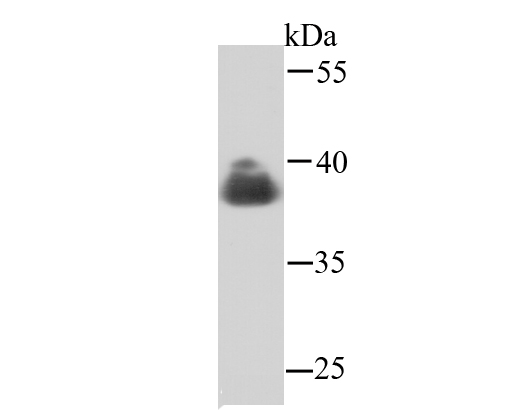 ICC staining Cathepsin B (red) in HepG2 cells.  Cells were fixed in paraformaldehyde, permeabilised with 0.25% Triton X100/PBS.