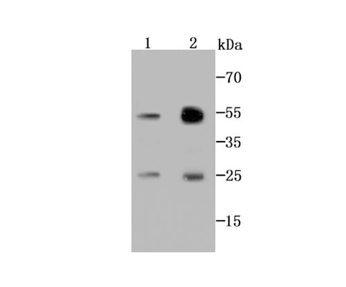 Western blot analysis of AK6 on MCF-7 cell (1) and human lung tissue (2) lysate using anti-AK6 antibody at 1/1000 dilution.