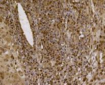 Immunohistochemical analysis of paraffin- embedded human lung cancer tissue using anti-EFTUD2 Mouse mAb.