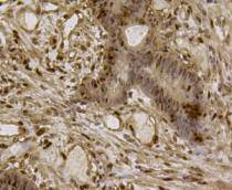 Immunohistochemical analysis of paraffin- embedded human colon cancer tissue using anti-EFTUD2 Mouse mAb.