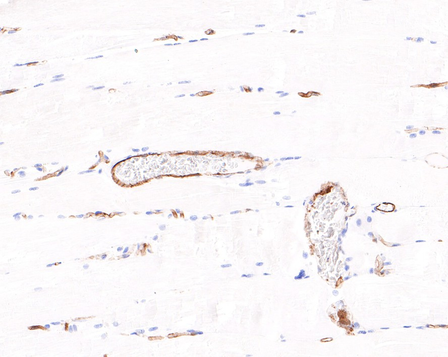 Flow cytometric analysis of CD31 was done on Jurkat cells. The cells were fixed, permeabilized and stained with the primary antibody (M1511-8, 1/100) (red). After incubation of the primary antibody at room temperature for an hour, the cells were stained with a Alexa Fluor 488-conjugated Goat anti-Rabbit IgG Secondary antibody at 1/1000 dilution for 30 minutes.Unlabelled sample was used as a control (cells without incubation with primary antibody; black).