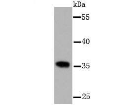 Western blot analysis of PP2A(alpha+beta) on A431 cell lysate using anti-PP2A(alpha+beta) antibody at 1/1000 dilution.