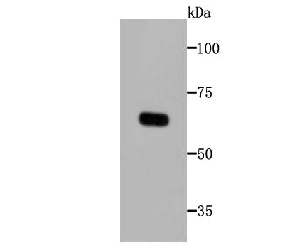 Western blot analysis of tyrosinase on melanoma cells lysates using anti- tyrosinase antibody at 1/1,000 dilution.