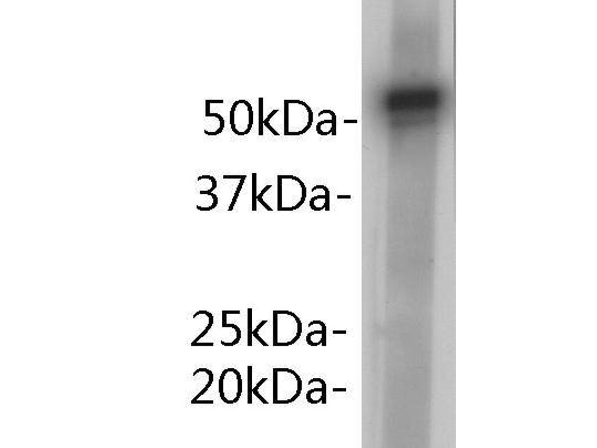 Western blot analysis on human plasma using anti- Alpha 1-Antitrypsin antibody.
