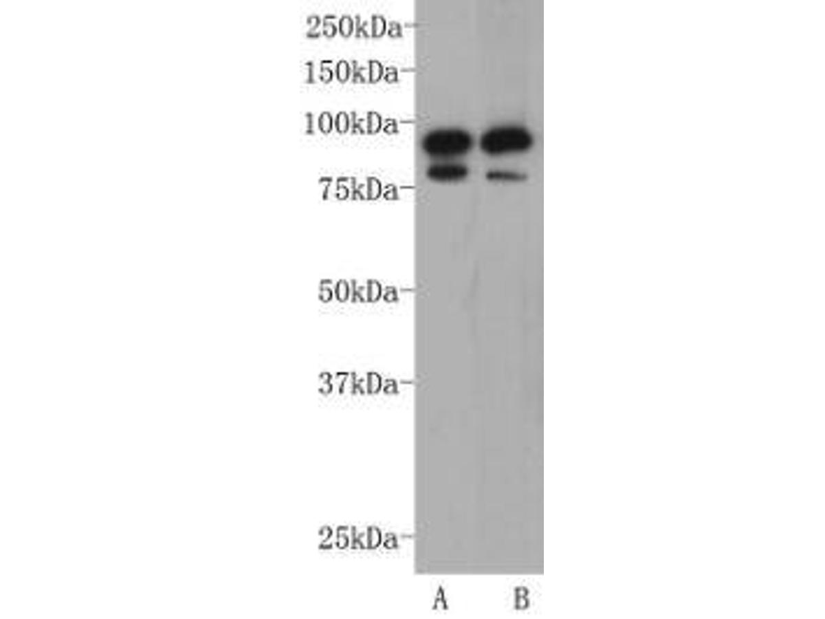 Western blot analysis on F9 (A) and NCCIT (B) cell lysates using anti-CD19 rabbit polyclonal antibody.