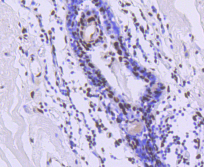 Immunohistochemical analysis of paraffin-embedded human breast cancer tissue using anti-TRIM28 antibody. Counter stained with hematoxylin.