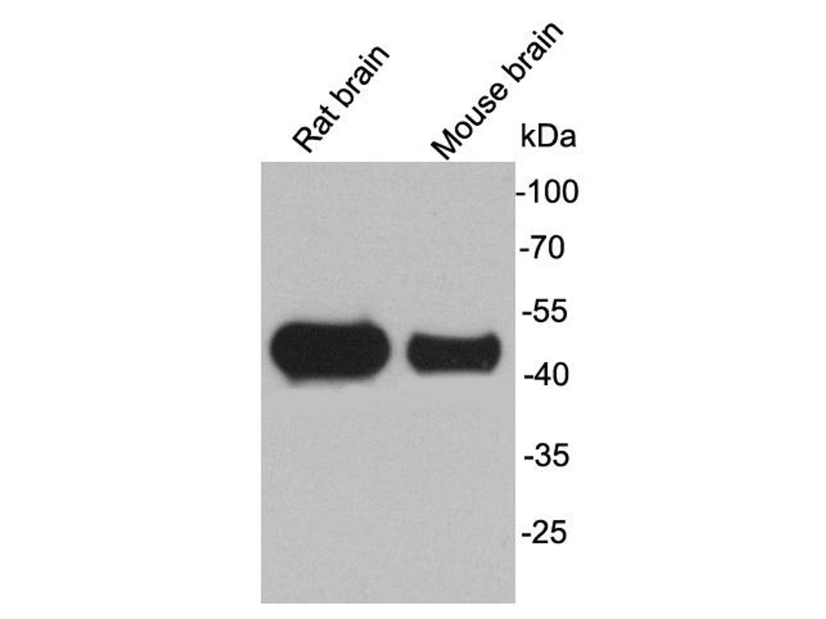 Western blot analysis on rat and mouse brain lysates using anti-GFAP rabbit polyclonal antibodies.