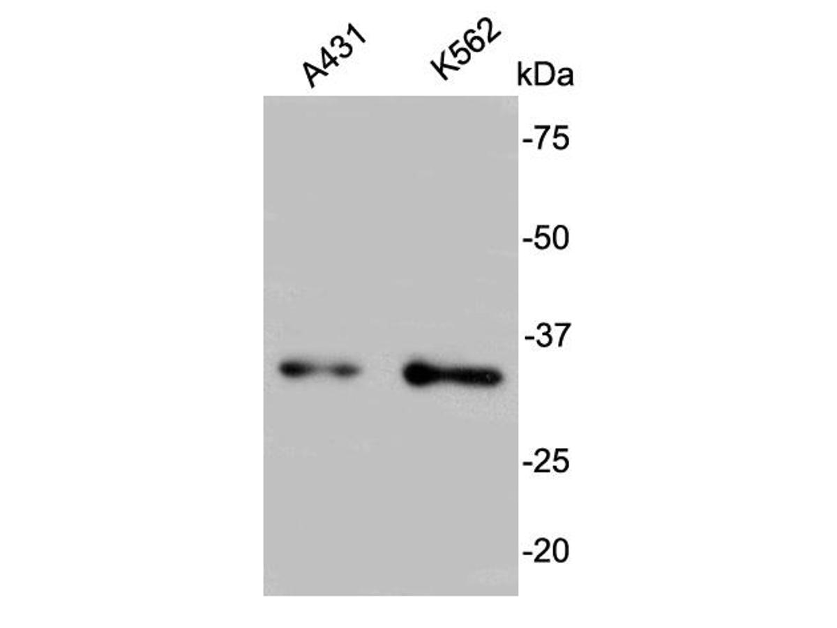 Western blot analysis on A431 and K562 cell lysates using anti-BCL2L1rabbit polyclonal antibodies. <br />  <br />