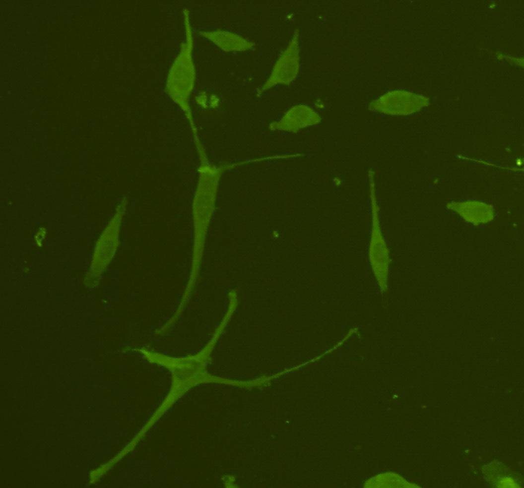 Immunofluorescent staining of A172 cells using anti- GFAP rabbit polyclonal antibody.