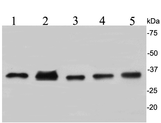 Western blot analysis of CDK2 on different cell lysates using anti-CDK2 antibody at 1/1,000 dilution.<br /> Positive control:<br /> Lane 1: A549<br /> Lane 2: F9<br /> Lane 3: PC-12<br /> Lane 4: Mouse thymus<br /> Lane 5: Human liver