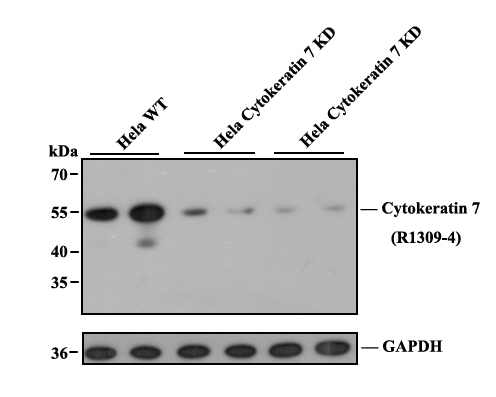 Western blot analysis of Cytokeratin 7 on A549 cell lysate. Proteins were transferred to a PVDF membrane and blocked with 5% BSA in PBS for 1 hour at room temperature. The primary antibody was used at a 1:500 dilution in 5% BSA at room temperature for 2 hours. Goat Anti-Rabbit IgG - HRP Secondary Antibody (HA1001) at 1:5,000 dilution was used for 1 hour at room temperature.