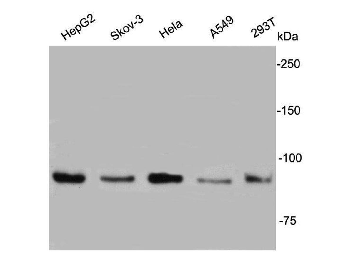 Western blot analysis on cell lysates using anti- IGF1R rabbit polyclonal antibodies.