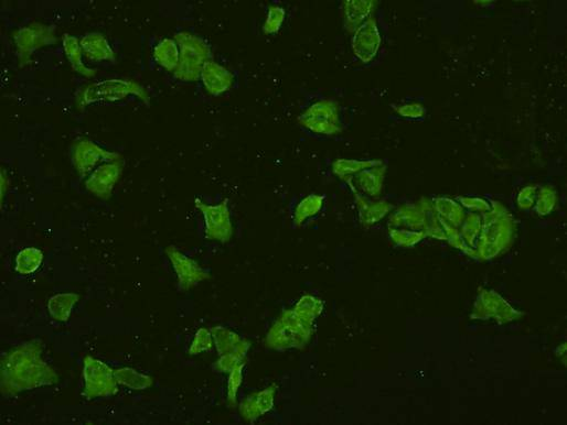 ICC staining PI3-kinase p85 subunit alpha in Hela cells (green). Cells were fixed in paraformaldehyde, permeabilised with 0.25% Triton X100/PBS.