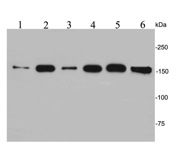 Western blot analysis of EEA1 on different lysates. Proteins were transferred to a PVDF membrane and blocked with 5% BSA in PBS for 1 hour at room temperature. The primary antibody was used at a 1:500 dilution in 5% BSA at room temperature for 2 hours. Goat Anti-Rabbit IgG - HRP Secondary Antibody (HA1001) at 1:5,000 dilution was used for 1 hour at room temperature.<br /> Positive control: <br /> Lane 1: NIH/3T3 cell lysate<br /> Lane 2: Hela cell lysate<br /> Lane 3: Jurkat cell lysate<br /> Lane 4: 293T cell lysate<br /> Lane 5: A431 cell lysate<br /> Lane 6: Rat brain tissue lysate