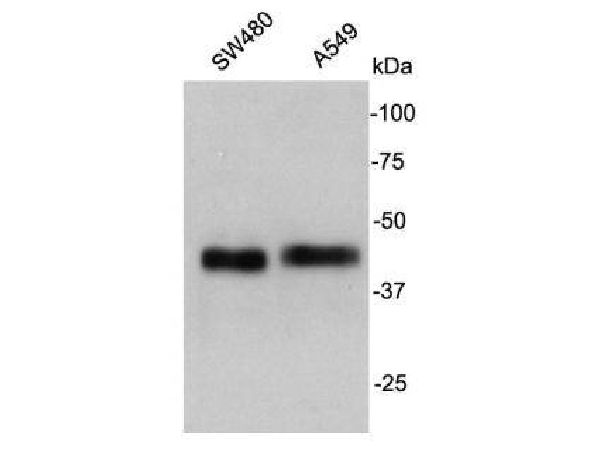 Western blot analysis on cell lysates using anti- Cathepsin B rabbit polyclonal antibodies.