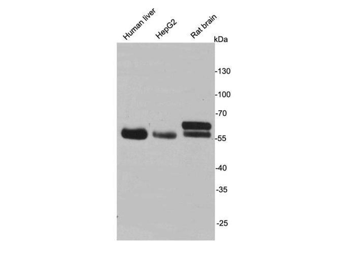 Western blot analysis on cell and tissue lysates using anti- MAOA rabbit polyclonal antibodies.