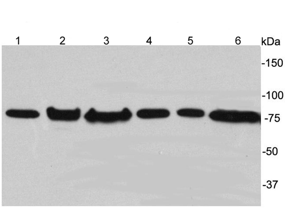 Western blot analysis of ERp72 on different lysates. Proteins were transferred to a PVDF membrane and blocked with 5% BSA in PBS for 1 hour at room temperature. The primary antibody was used at a 1:5,000 dilution in 5% BSA at room temperature for 2 hours. Goat Anti-Rabbit IgG - HRP Secondary Antibody (HA1001) at 1:5,000 dilution was used for 1 hour at room temperature.<br /> Positive control: <br /> Lane 1: Hela cell lysate, untreated <br /> Lane 2: MCF-7 cell lysate, untreated<br /> Lane 3: HepG2 cell lysate, untreated <br /> Lane 4: PANC-1 cell lysate, untreated<br /> Lane 5: PC-12 cell lysate, untreated <br /> Lane 6: Human liver tissue lysate, untreated