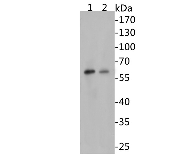 Western blot analysis of Beclin 1 on different lysates. Proteins were transferred to a PVDF membrane and blocked with 5% BSA in PBS for 1 hour at room temperature. The primary antibody (R1509-1, 1/500) was used in 5% BSA at room temperature for 2 hours. Goat Anti-Rabbit IgG - HRP Secondary Antibody (HA1001) at 1:5,000 dilution was used for 1 hour at room temperature.<br /> Positive control: <br /> Lane 1: Jurkat cell lysates<br /> Lane 2: 293 cell lysates