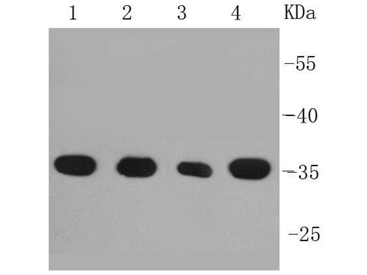 Western blot analysis on different cell lysates using anti-PP2A(alpha+beta) rabbit polyclonal antibody. Positive control: <br />  Lane 1: A431 <br />  Lane 2: HepG2 <br />  Lane 3: F9 <br />  Lane 4: PC-12