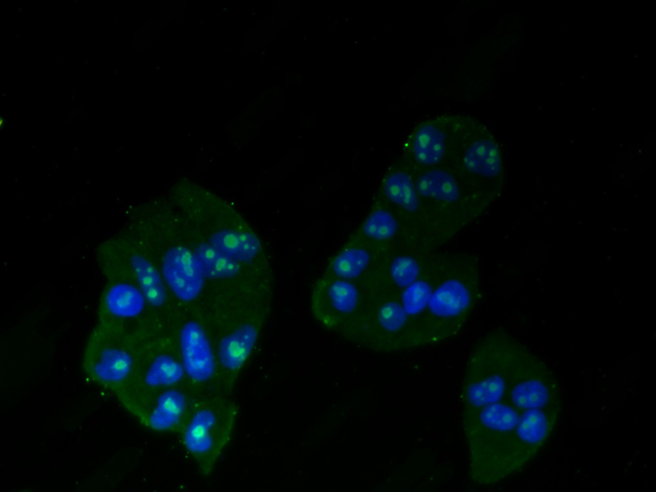ICC staining of MSH2 in Hela cells (green). Formalin fixed cells were permeabilized with 0.1% Triton X-100 in TBS for 10 minutes at room temperature and blocked with 1% Blocker BSA for 15 minutes at room temperature. Cells were probed with the primary antibody (R1510-32, 1/50) for 1 hour at room temperature, washed with PBS. Alexa Fluor®488 Goat anti-Rabbit IgG was used as the secondary antibody at 1/1,000 dilution. The nuclear counter stain is DAPI (blue).