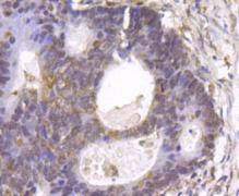 Immunohistochemical analysis of paraffin- embedded human colon cancer tissue using anti-GSK3 beta rabbit polyclonal antibody.