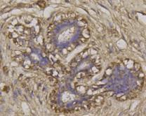 Immunohistochemical analysis of paraffin- embedded human breast tissue using anti-BECN1 rabbit polyclonal antibody.