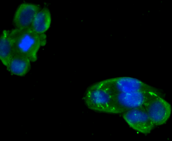 ICC staining Metadherin(LYRIC) in Hela cells (green). The nuclear counter stain is DAPI (blue). Cells were fixed in paraformaldehyde, permeabilised with 0.25% Triton X100/PBS.