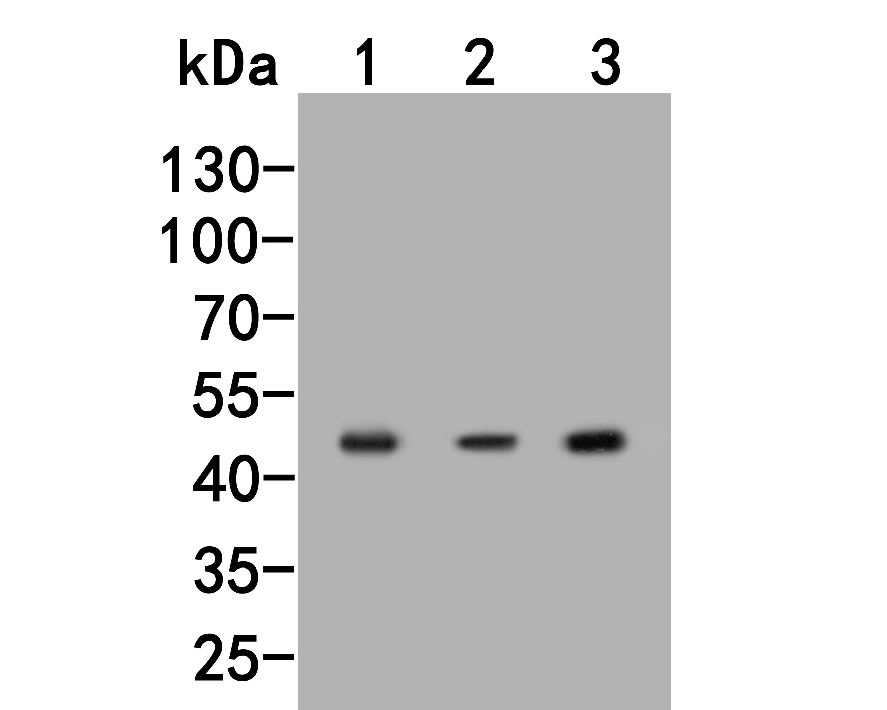 Western blot analysis of HSP47 on different lysates. Proteins were transferred to a PVDF membrane and blocked with 5% BSA in PBS for 1 hour at room temperature. The primary antibody (R1511-11, 1/500) was used in 5% BSA at room temperature for 2 hours. Goat Anti-Rabbit IgG - HRP Secondary Antibody (HA1001) at 1:5,000 dilution was used for 1 hour at room temperature.<br /> Positive control: <br /> Lane 1: Rat placenta tissue lysate<br /> Lane 2: Siha cell lysate<br /> Lane 3: NIH/3T3 cell lysate