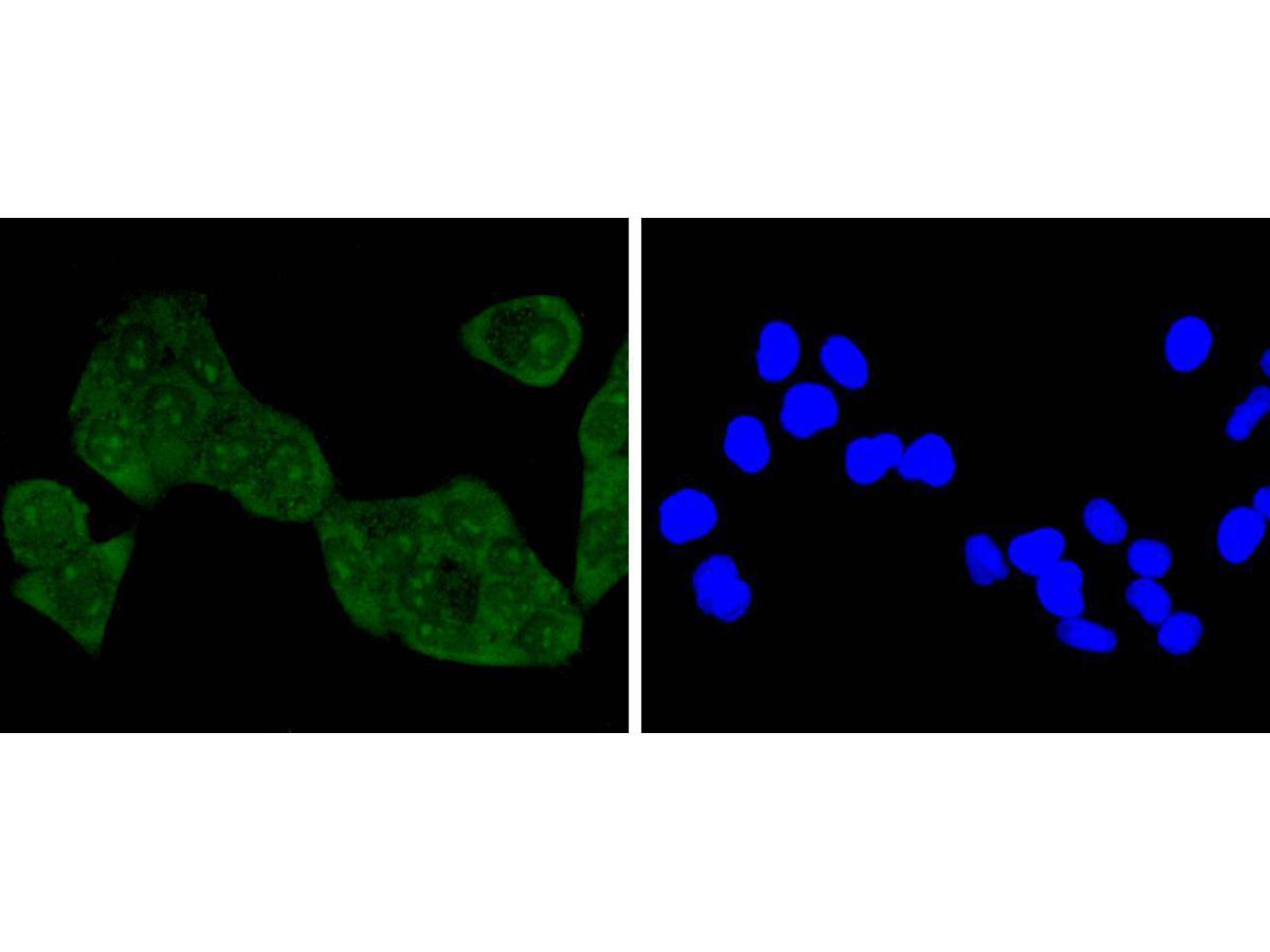 Immunocytochemical staining of Hela cells using anti-NADPH oxidase 4 rabbit polyclonal antibody.