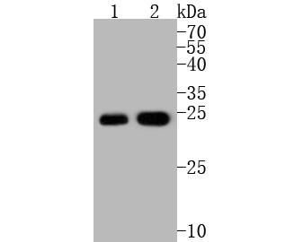 Western blot analysis of PGP9.5 on different lysates. Proteins were transferred to a PVDF membrane and blocked with 5% BSA in PBS for 1 hour at room temperature. The primary antibody (R1511-8, 1/500) was used in 5% BSA at room temperature for 2 hours. Goat Anti-Rabbit IgG - HRP Secondary Antibody (HA1001) at 1:5,000 dilution was used for 1 hour at room temperature.<br /> Positive control: <br /> Lane 1: SHG-44 cell lysate<br /> Lane 2: A172 cell lysate