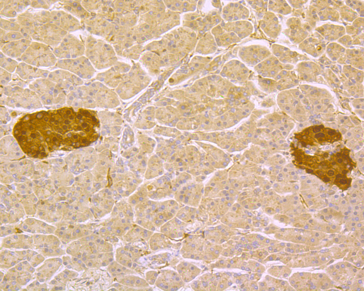 Immunohistochemical analysis of paraffin-embedded human pancreas tissue using anti-PGP9.5 antibody. The section was pre-treated using heat mediated antigen retrieval with Tris-EDTA buffer (pH 8.0-8.4) for 20 minutes.The tissues were blocked in 5% BSA for 30 minutes at room temperature, washed with ddH2O and PBS, and then probed with the primary antibody (R1511-8, 1/200) for 30 minutes at room temperature. The detection was performed using an HRP conjugated compact polymer system. DAB was used as the chromogen. Tissues were counterstained with hematoxylin and mounted with DPX.