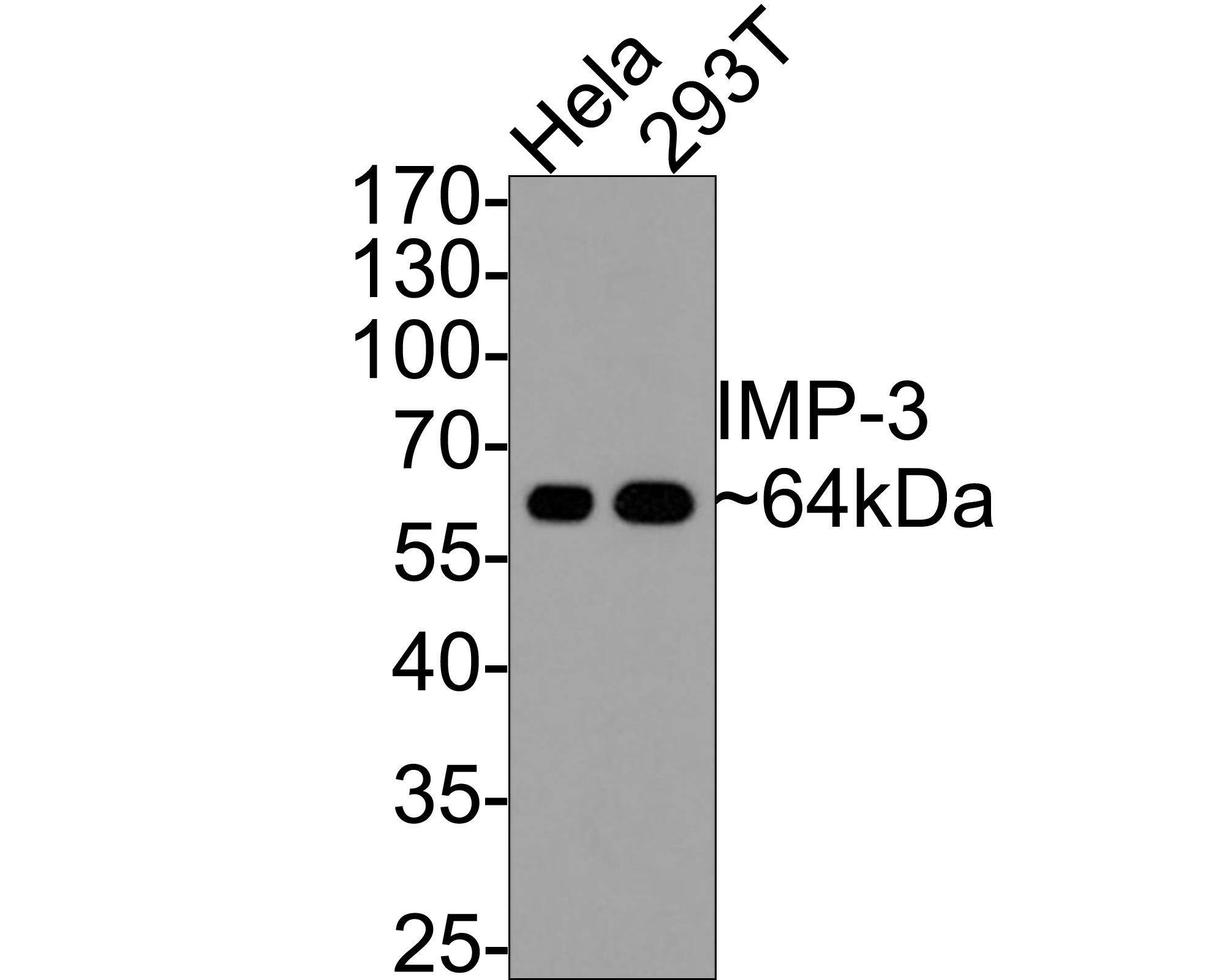 Western blot analysis of IMP-3 on Hela (1) and 293T (2) cell lysate using anti-IMP-3 antibody at 1/2,000 dilution.