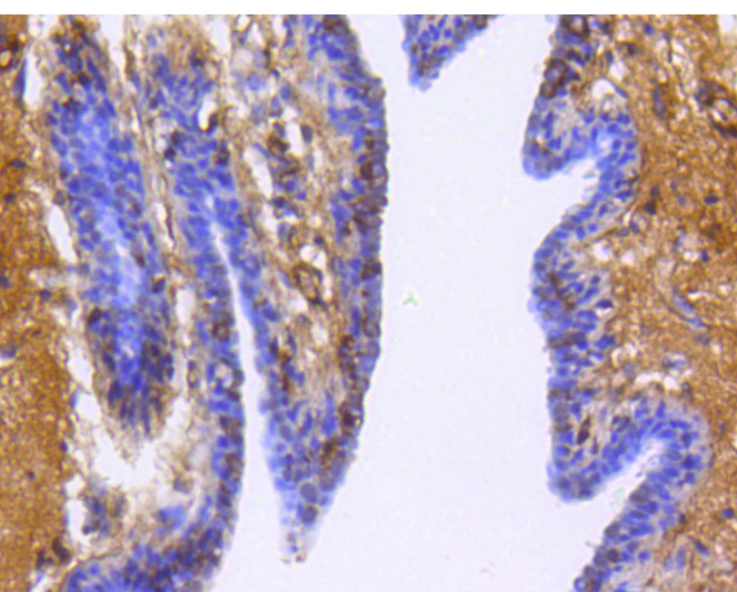 Immunohistochemical analysis of paraffin-embedded human breast cancer tissue using anti- Glypican-1 antibody. Counter stained with hematoxylin.