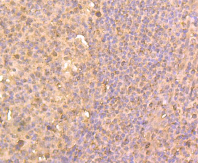 Immunohistochemical analysis of paraffin-embedded human colon cancer tissue using anti-HDAC2 antibody. Counter stained with hematoxylin.
