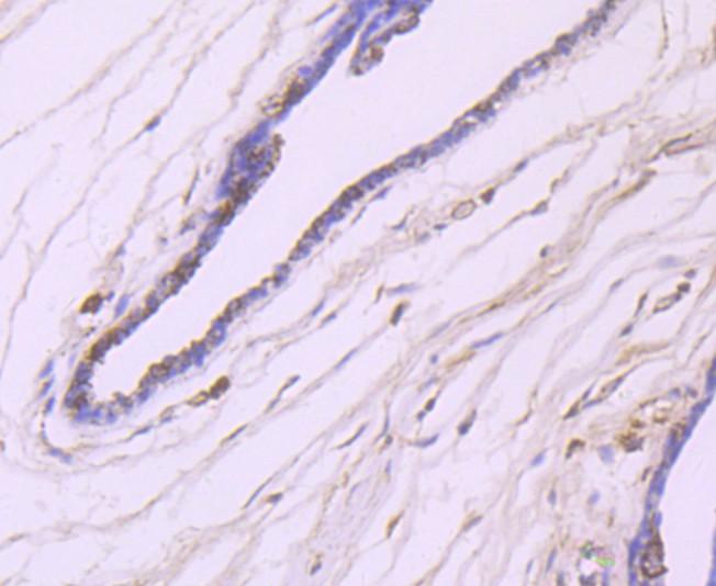 Immunohistochemical analysis of paraffin-embedded human breast cancer tissue using anti-IKK beta antibody. Counter stained with hematoxylin.