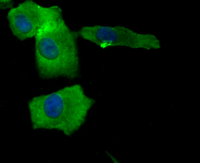ICC staining BAX in A549 cells (green). The nuclear counter stain is DAPI (blue). Cells were fixed in paraformaldehyde, permeabilised with 0.25% Triton X100/PBS.