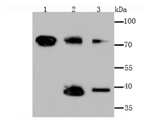 Western blot analysis of Tim3 on different lysates using anti-Tim3 antibody at 1/500 dilution.<br />  Positive control:<br />  Lane 1: Hela Lane 2: Mouse spleen Lane 3: PC-3M