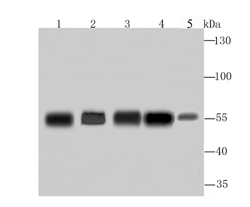 Western blot analysis of G6PD on different lysates using anti-G6PD antibody at 1/1,000 dilution.<br />  Positive control:<br />  Lane 1: A549 Lane 2: Hela Lane 3: MCF-7 Lane 4: PC-12 Lane 5: Mouse spleen