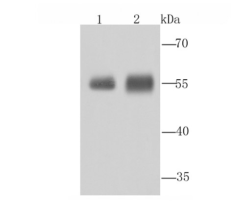 Western blot analysis of Aldh1A1 on different tissue lysate using anti-Aldh1A1 antibody at 1/1,000 dilution.<br />  Positive control:<br />  Lane 1: Mouse liver Lane 2: Human liver