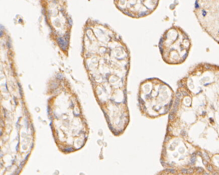Immunohistochemical analysis of paraffin-embedded human placenta tissue using anti-Meckelin antibody. The section was pre-treated using heat mediated antigen retrieval with Tris-EDTA buffer (pH 8.0-8.4) for 20 minutes.The tissues were blocked in 5% BSA for 30 minutes at room temperature, washed with ddH2O and PBS, and then probed with the primary antibody (0903-7, 1/100) for 30 minutes at room temperature. The detection was performed using an HRP conjugated compact polymer system. DAB was used as the chromogen. Tissues were counterstained with hematoxylin and mounted with DPX.