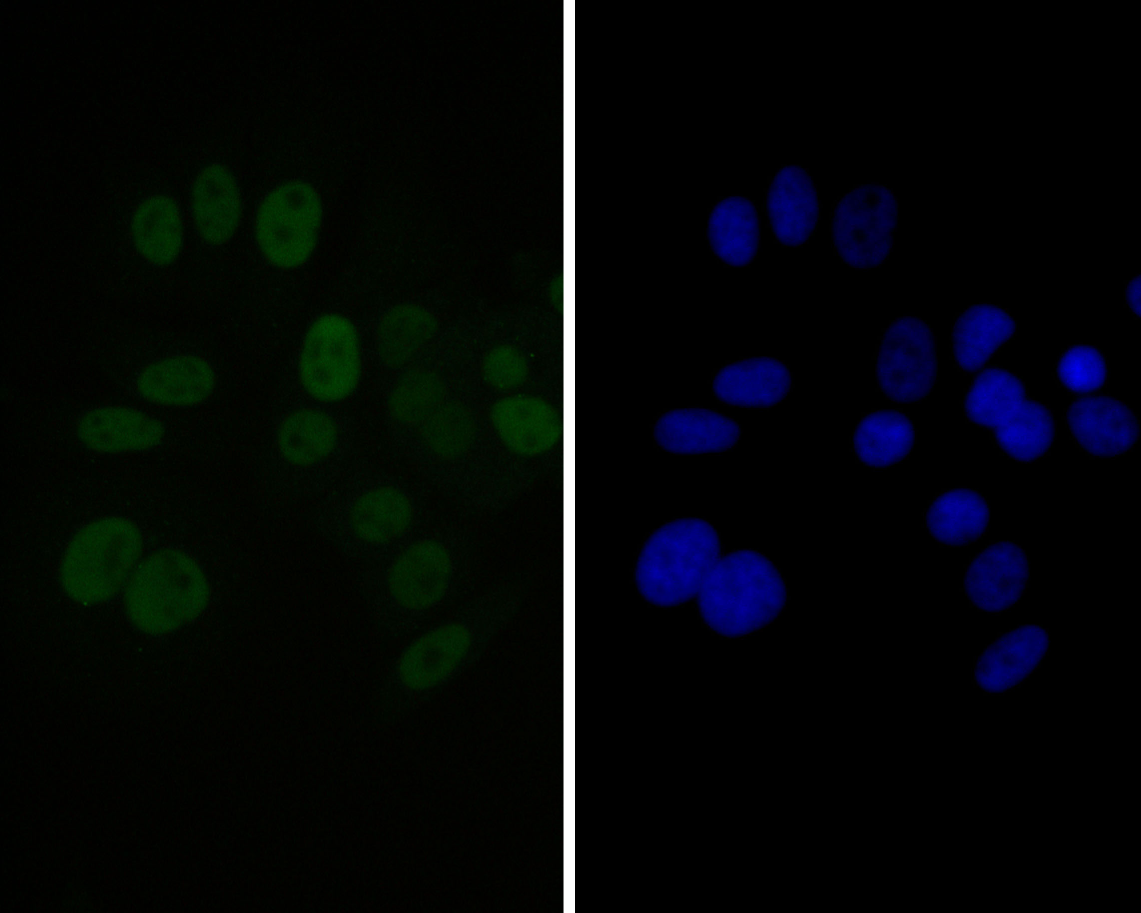 ICC staining of GATA3 in MCF-7 cells (green). Formalin fixed cells were permeabilized with 0.1% Triton X-100 in TBS for 10 minutes at room temperature and blocked with 1% Blocker BSA for 15 minutes at room temperature. Cells were probed with the primary antibody (EM1902-33, 1/100) for 1 hour at room temperature, washed with PBS. Alexa Fluor®488 Goat anti-Mouse IgG was used as the secondary antibody at 1/100 dilution. The nuclear counter stain is DAPI (blue).