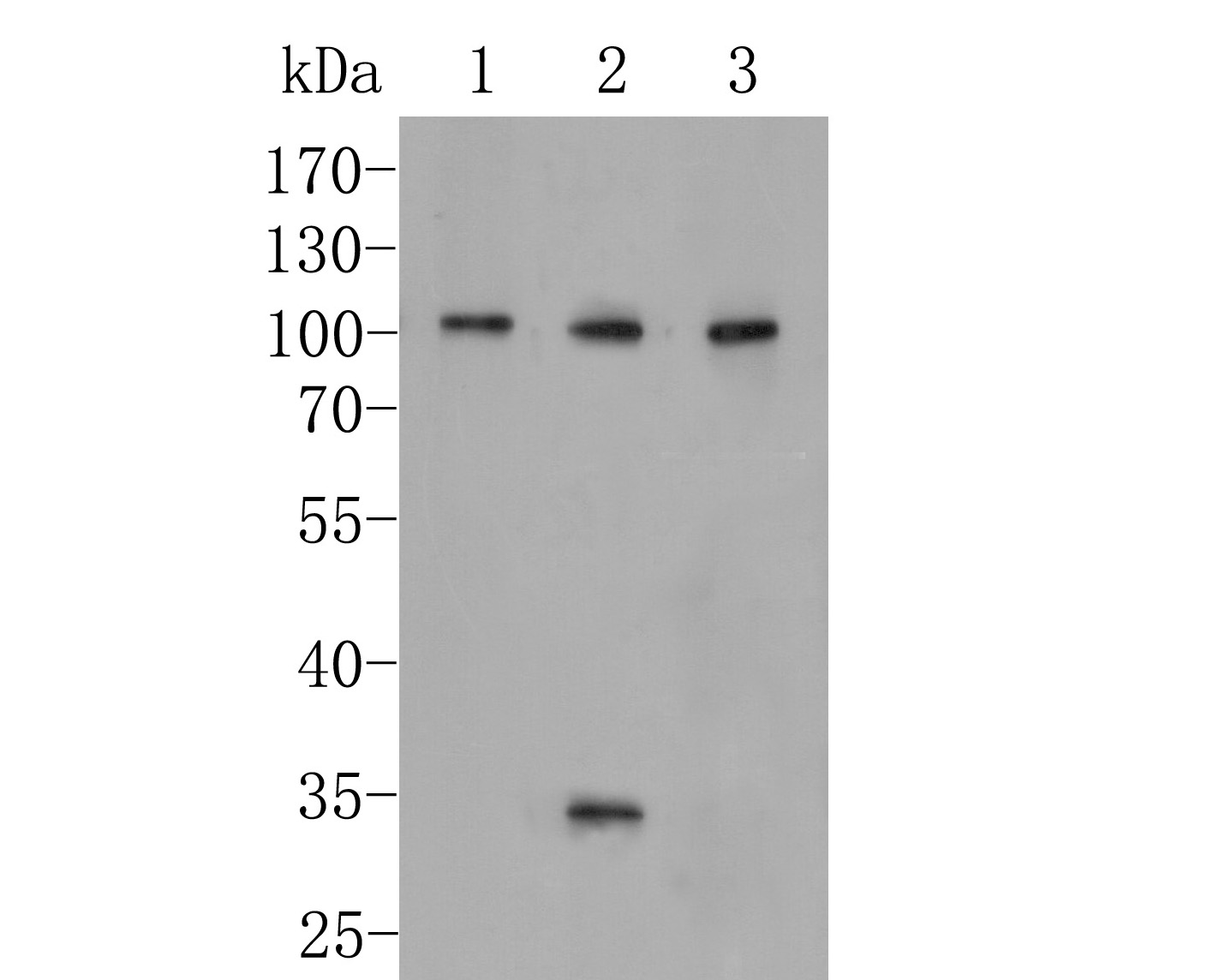 Western blot analysis of CD166 on different lysates. Proteins were transferred to a PVDF membrane and blocked with 5% BSA in PBS for 1 hour at room temperature. The primary antibody (EM1902-36, 1/500) was used in 5% BSA at room temperature for 2 hours. Goat Anti-Mouse IgG - HRP Secondary Antibody (HA1006) at 1:5,000 dilution was used for 1 hour at room temperature.<br /> Positive control: <br /> Lane 1: PC-3M cell lysate<br /> Lane 2: A549 cell lysate<br /> Lane 3: SHSY5Y cell lysate
