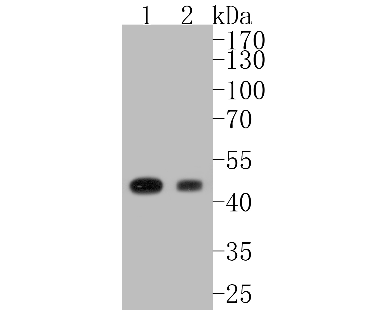 Western blot analysis of Glutamine Synthetase on different lysates. Proteins were transferred to a PVDF membrane and blocked with 5% BSA in PBS for 1 hour at room temperature. The primary antibody (EM1902-39, 1/500) was used in 5% BSA at room temperature for 2 hours. Goat Anti-Mouse IgG - HRP Secondary Antibody (HA1006) at 1:5,000 dilution was used for 1 hour at room temperature.<br /> Positive control: <br /> Lane 1: SK-Br-3 cell lysate<br /> Lane 2: 293 cell lysate