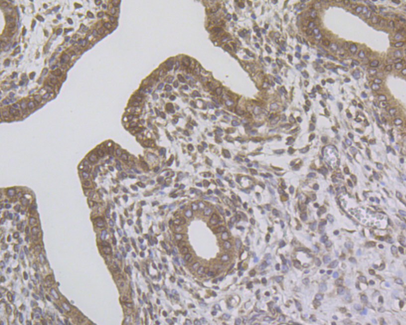 Immunohistochemical analysis of paraffin-embedded rat uterus tissue using anti-ERN1 antibody. The section was pre-treated using heat mediated antigen retrieval with Tris-EDTA buffer (pH 8.0-8.4) for 20 minutes.The tissues were blocked in 5% BSA for 30 minutes at room temperature, washed with ddH2O and PBS, and then probed with the primary antibody (ER1902-90, 1/100) for 30 minutes at room temperature. The detection was performed using an HRP conjugated compact polymer system. DAB was used as the chromogen. Tissues were counterstained with hematoxylin and mounted with DPX.