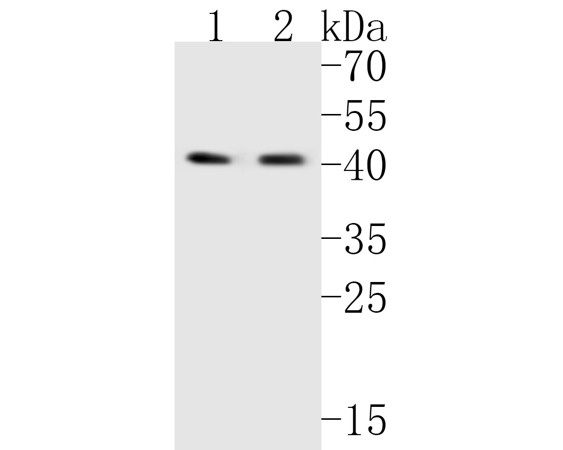 Western blot analysis of MFF on different lysates. Proteins were transferred to a PVDF membrane and blocked with 5% BSA in PBS for 1 hour at room temperature. The primary antibody (ER1902-93, 1/500) was used in 5% BSA at room temperature for 2 hours. Goat Anti-Rabbit IgG - HRP Secondary Antibody (HA1001) at 1:5,000 dilution was used for 1 hour at room temperature.<br />  Positive control: <br />  Lane 1: Hela cell lysate<br />  Lane 2: HepG2 cell lysate
