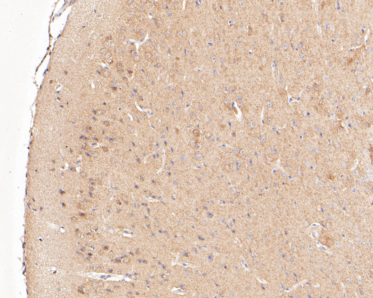 Immunohistochemical analysis of paraffin-embedded mouse brain tissue using anti-PYCR1 antibody. The section was pre-treated using heat mediated antigen retrieval with Tris-EDTA buffer (pH 8.0-8.4) for 20 minutes.The tissues were blocked in 5% BSA for 30 minutes at room temperature, washed with ddH2O and PBS, and then probed with the primary antibody (ER1902-94, 1/400) for 30 minutes at room temperature. The detection was performed using an HRP conjugated compact polymer system. DAB was used as the chromogen. Tissues were counterstained with hematoxylin and mounted with DPX.