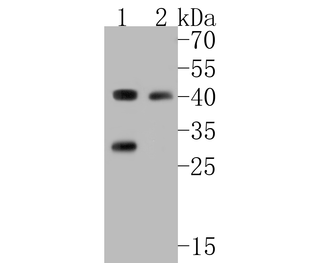 Western blot analysis of PICK1 on different lysates. Proteins were transferred to a PVDF membrane and blocked with 5% BSA in PBS for 1 hour at room temperature. The primary antibody (ER1902-97, 1/500) was used in 5% BSA at room temperature for 2 hours. Goat Anti-Rabbit IgG - HRP Secondary Antibody (HA1001) at 1:200,000 dilution was used for 1 hour at room temperature.<br /> Positive control: <br /> Lane 1: SH-SY5Y cell lysate<br /> Lane 2: 293 cell lysate