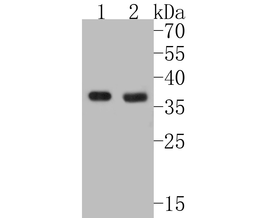 Western blot analysis of MTHFD2 on different lysates. Proteins were transferred to a PVDF membrane and blocked with 5% BSA in PBS for 1 hour at room temperature. The primary antibody (ER1902-98, 1/500) was used in 5% BSA at room temperature for 2 hours. Goat Anti-Rabbit IgG - HRP Secondary Antibody (HA1001) at 1:5,000 dilution was used for 1 hour at room temperature.<br /> Positive control: <br /> Lane 1: HL-60 cell lysate<br /> Lane 2: 293T cell lysate