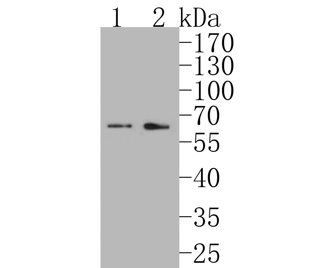 Western blot analysis of MAGT1 on different lysates. Proteins were transferred to a PVDF membrane and blocked with 5% BSA in PBS for 1 hour at room temperature. The primary antibody (ER1902-99, 1/500) was used in 5% BSA at room temperature for 2 hours. Goat Anti-Rabbit IgG - HRP Secondary Antibody (HA1001) at 1:5,000 dilution was used for 1 hour at room temperature.<br />  Positive control: <br />  Lane 1: Mouse stomach tissue lysate<br />  Lane 2: Rat testis tissue lysate